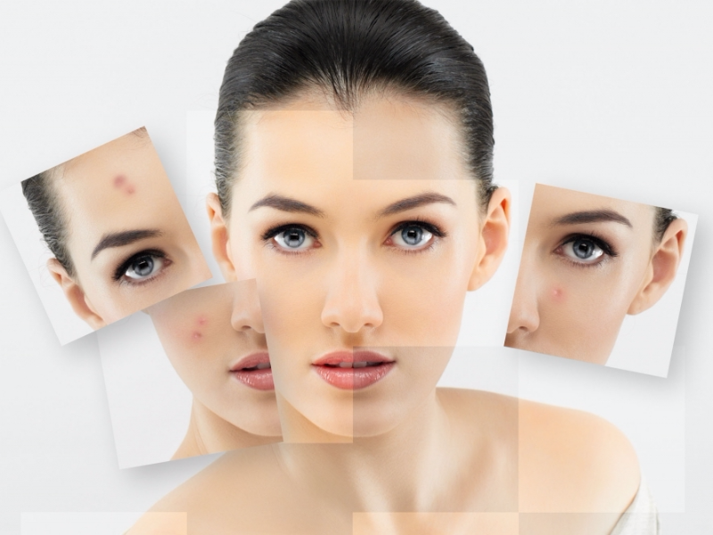 Picture of Acne treatment of acne, acne